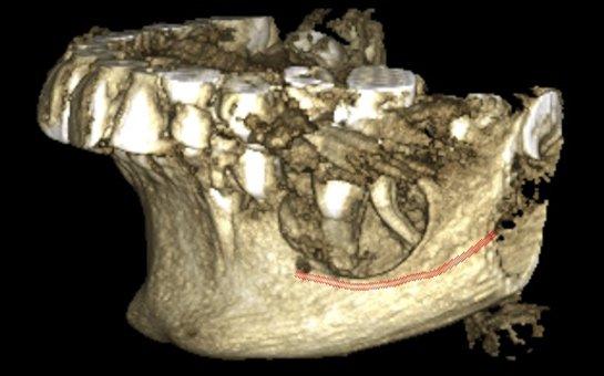 2D & 3D Digital Radiology